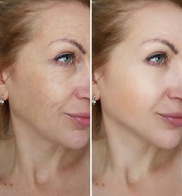face woman wrinkles  _.jpg