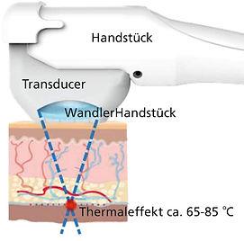 Transducer Handstueck.tif - Kopie.jpg
