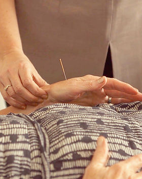 Acupuncture Pulse Points.JPG
