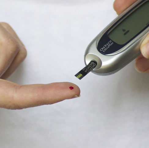 Purple Corn Extract and Its Anti-Diabetic Activity