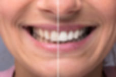 Teeth Whitening in Edinburgh