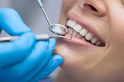 Free NHS Dentist Checkup in Edinburgh