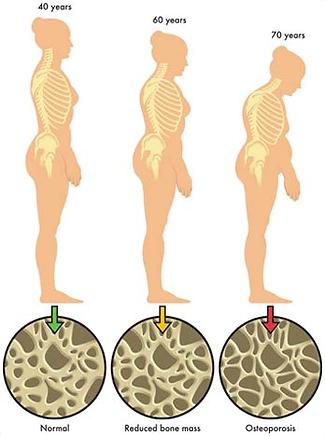 Bone Mineral Density Study