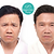 Botox 3 area wrinkle Combo