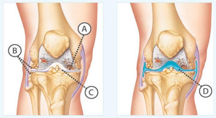 kneeinjection.jpg