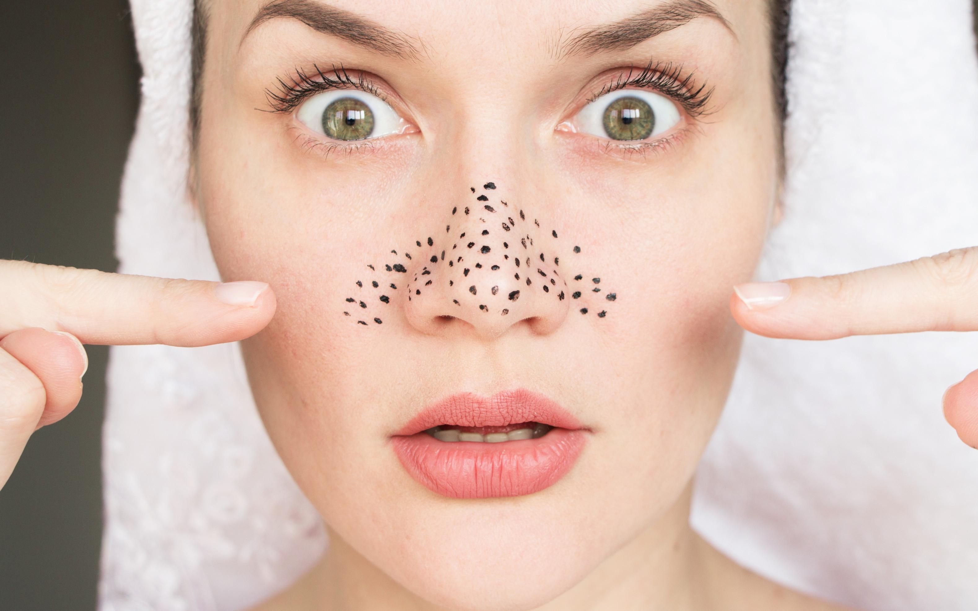 EPI Skin Irregularity Treatment
