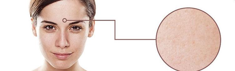 Skin-Type-Examples2-1.jpg