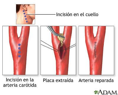 Endarterectomia carotidea.jpg