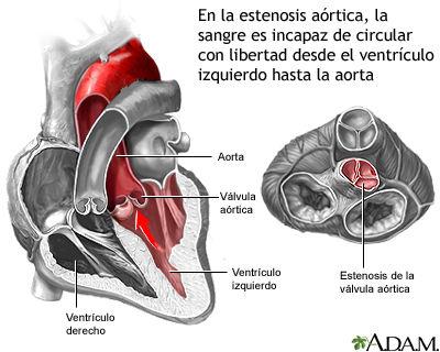 Estenosis aortica.jpg