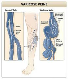 Varicose veins.jpg
