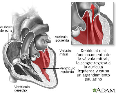Insuficiencia mitral.jpg