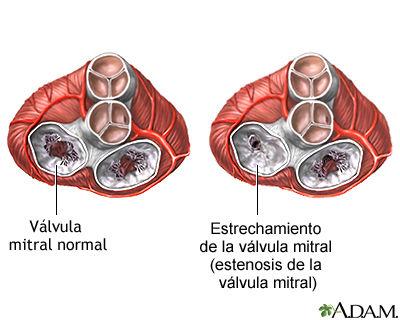 Estenosis mitral.jpg