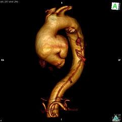 reconstrucciones aneurisma de aorta ascendente_3D VR Image.jp