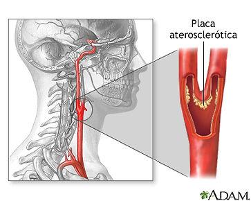 Aterosclerosis carotida.jpg