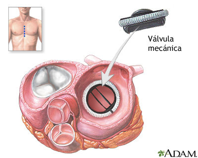 Valvula_mitral_mecanica.jpg