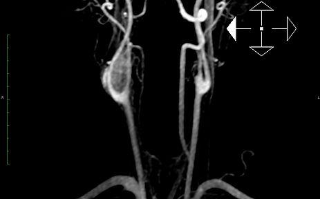 Quemodectoma, tumor del glomus carotideo, Valderrama, Cirujano cardiovascular Málaga