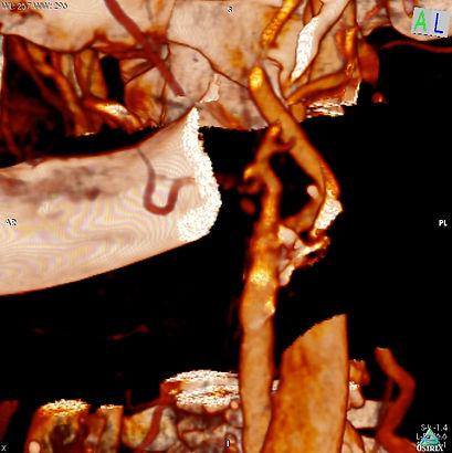 Eulogio_Left Carotid 3D VR Image.jpg
