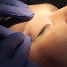 Electrolysis & Hair Removal in Chicago suburbs
