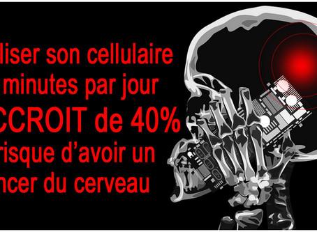 Explosion mondiale du nombre de cancers du cerveau