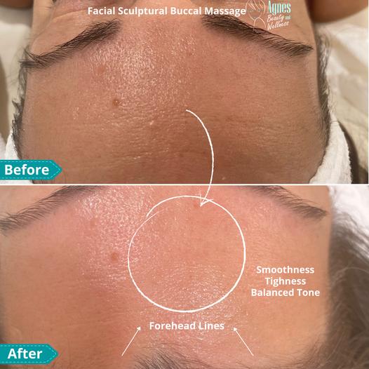 Facial Sculptural Buccal Massage 1.png