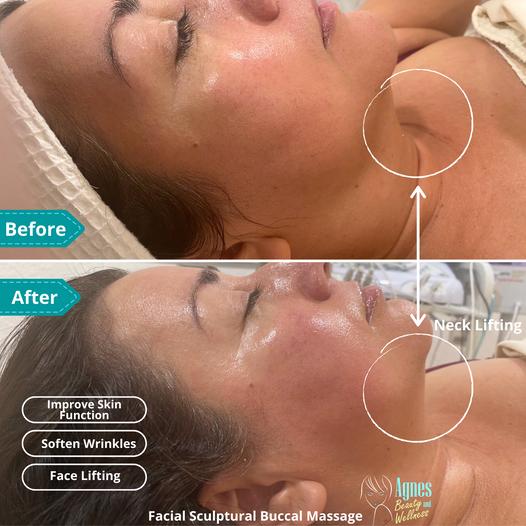 Facial Sculptural Buccal Massage.png