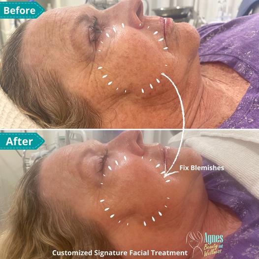 Customized Signature Facial Treatment 1.