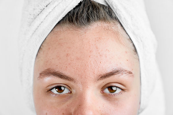 womans-face-upclose-skin-acne-concerns.j