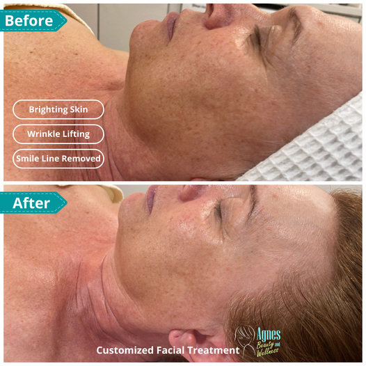 Customized Facial Treatment 2.png