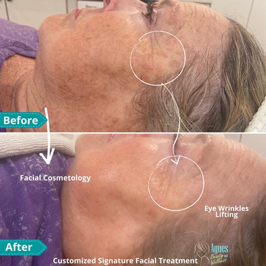 Customized Signature Facial Treatment 3.