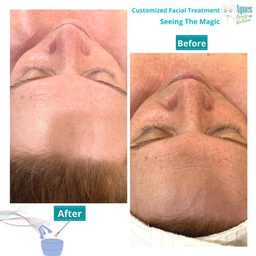 Customized Facial Treatment 3.png