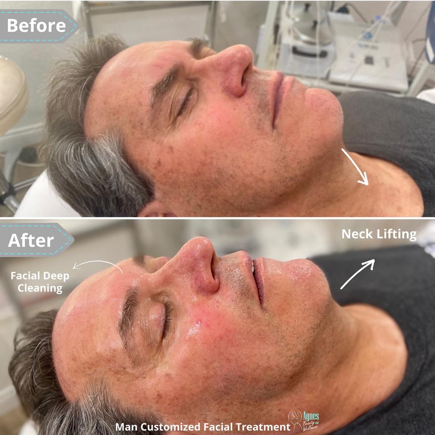 Man Customized Facial Treatment 2.png