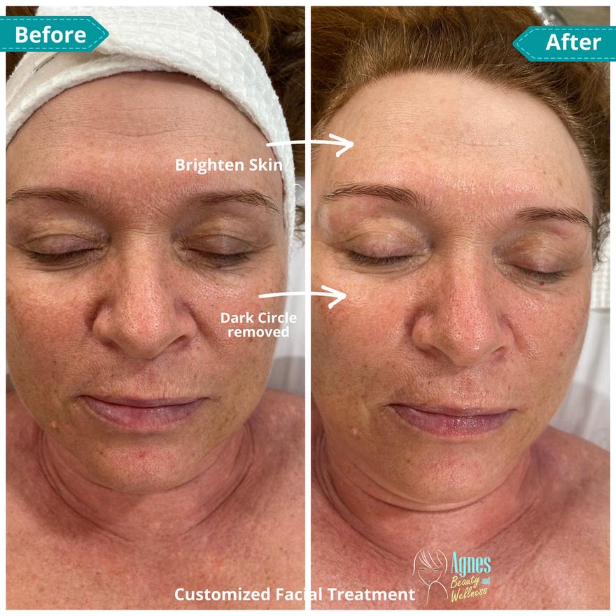 Customized Facial Treatment 1.png