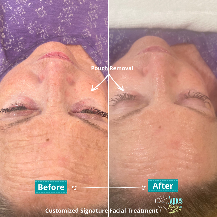 Customized Signature Facial Treatment 2.