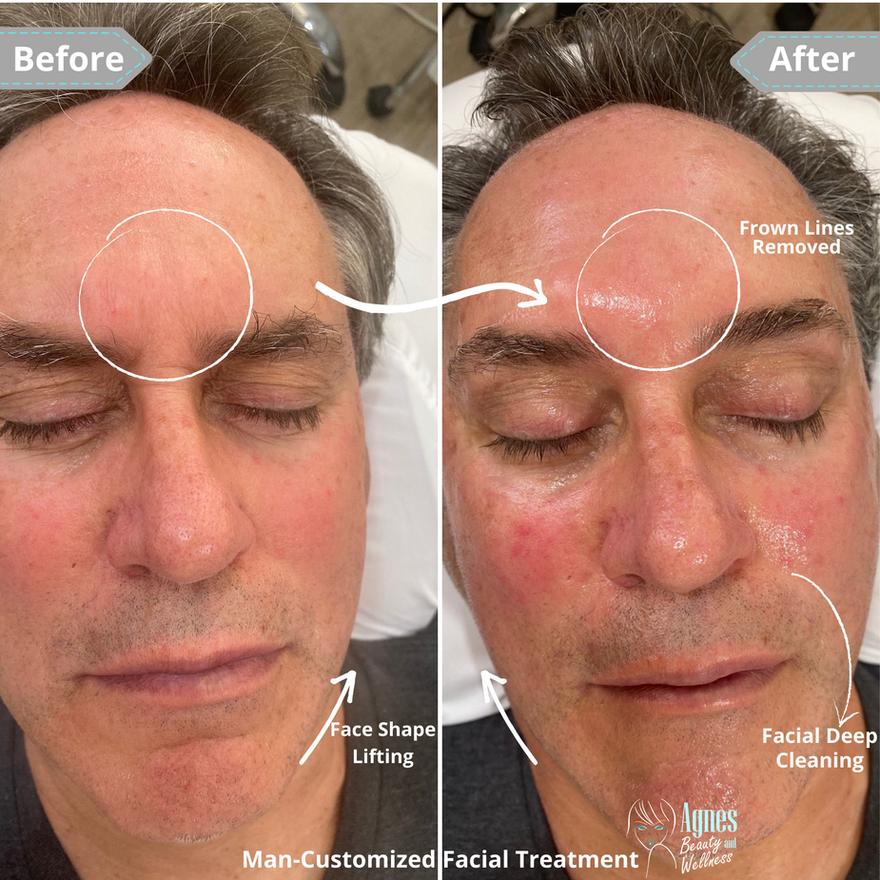 Man Customized Facial Treatment 1.png
