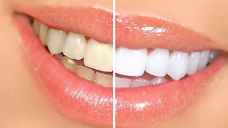 Before-After Celebs_tanden.jpg
