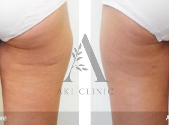 Aki clinic Lipofirm before after 01.jpg