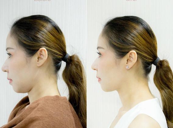 Aki clinic Mesofat before after 02.jpg
