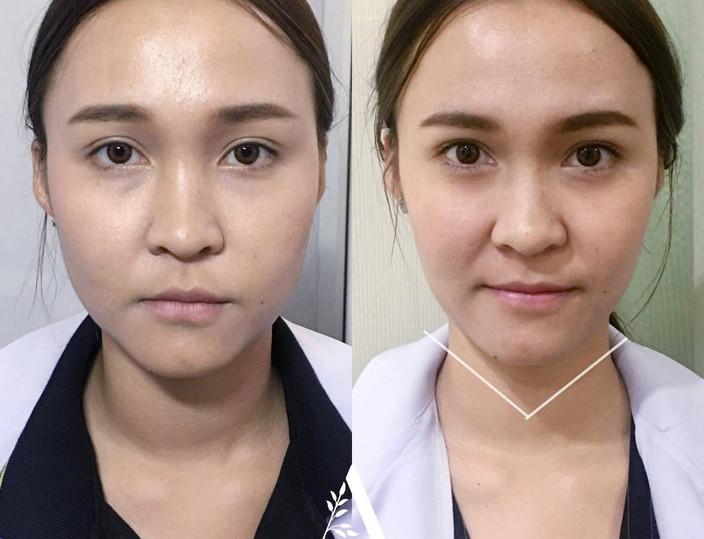 Aki clinic botox lifting.jpg