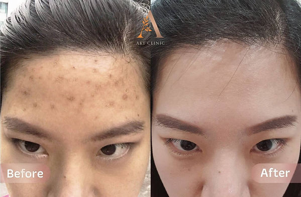 Aki clinic IPL Laser before after.jpg