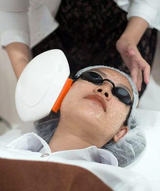 Aki clinic IPL Laser 02.jpg
