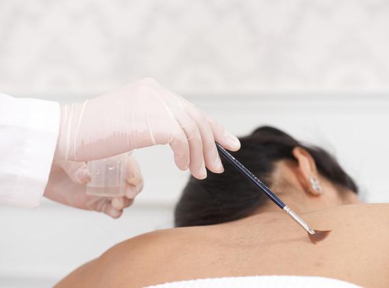 01 Aki clinic  back treatment peeling .j