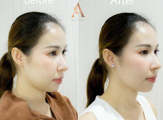Aki clinic Mesofat before after 01.jpg
