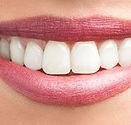 Λεύκανση Δοντιών.jpg