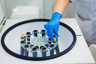 Μέθοδος PRP (platelet rich plasma) στην