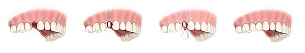 Όταν λείπει 1 δόντι.jpg