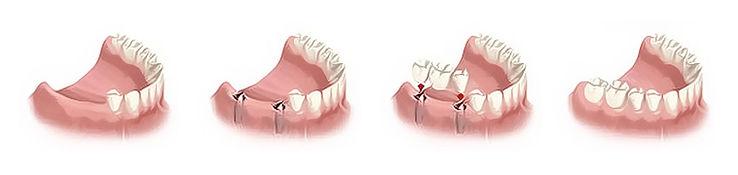 Όταν λείπει 2 ή περισσότερα δόντια.jpg