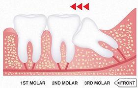 Χειρουργική αφαίρεση υπεράριθμων δοντιών