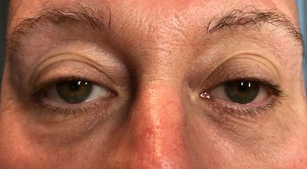 borse oculari post trattamento con blefaroplasma