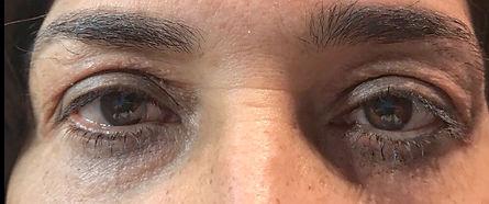 borse oculari uomo post trattamento con blefaroplasma