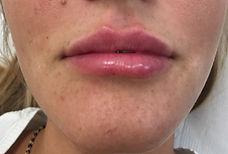 labbra donna trattate con filler